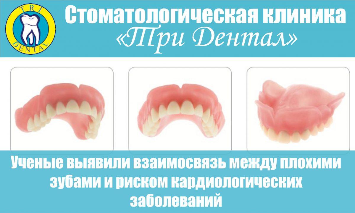Ученые выявили взаимосвязь между плохими зубами и риском кардиологических заболеваний